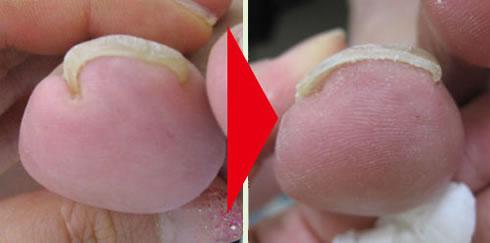 巻き爪補正施術例